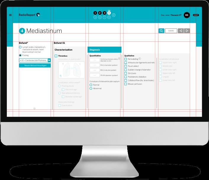 Mediastinum with Grid