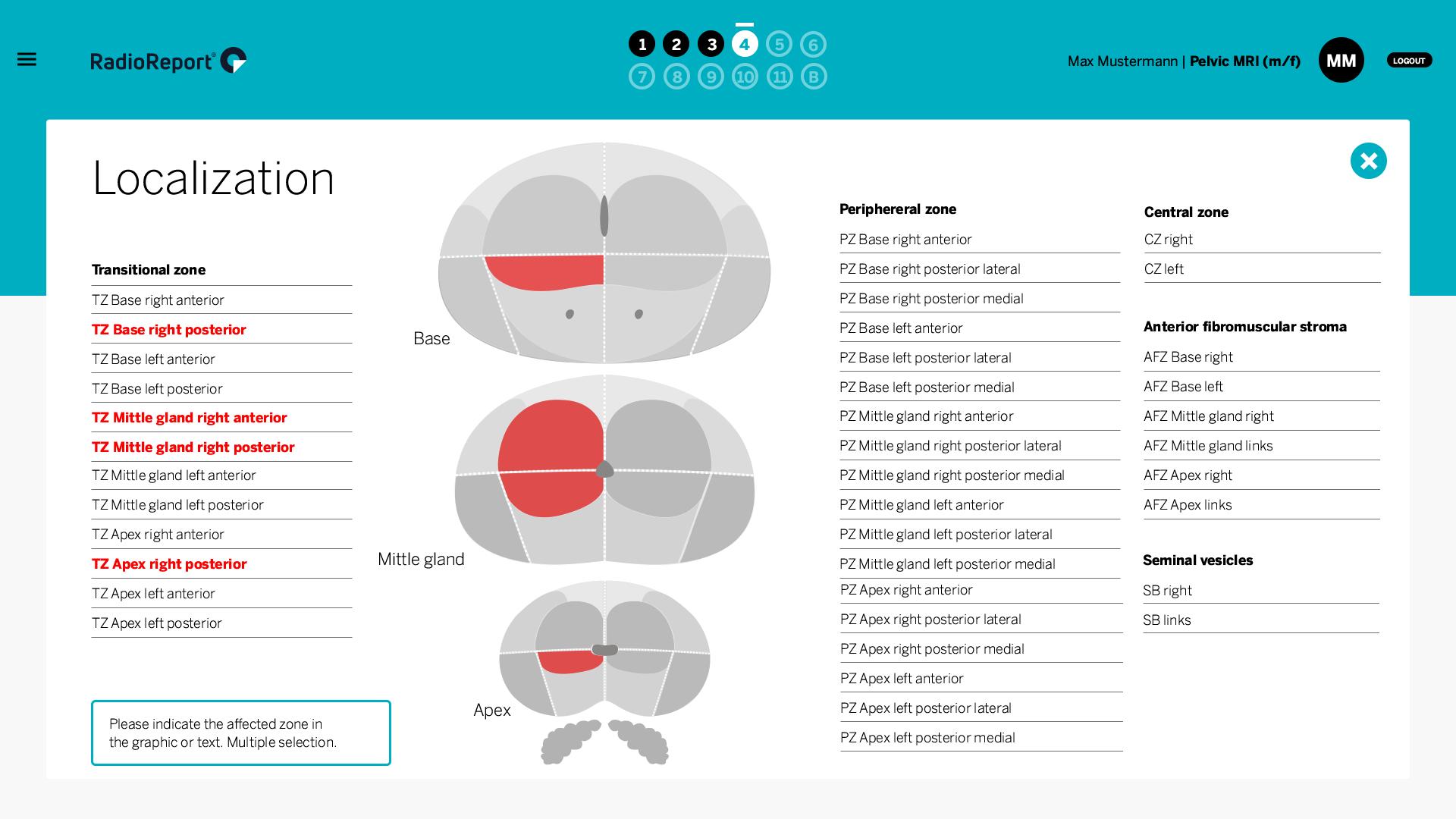 RadioReport MRI Pelvis Localization Prostate