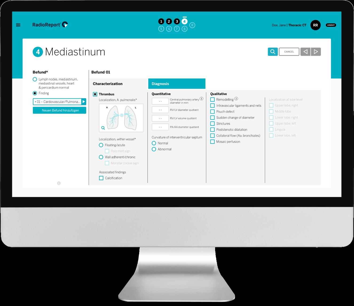 mediastinum 4k